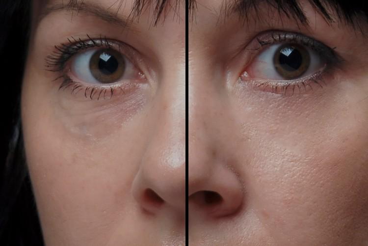 Tränensäcke reduzieren (ohne Brille)