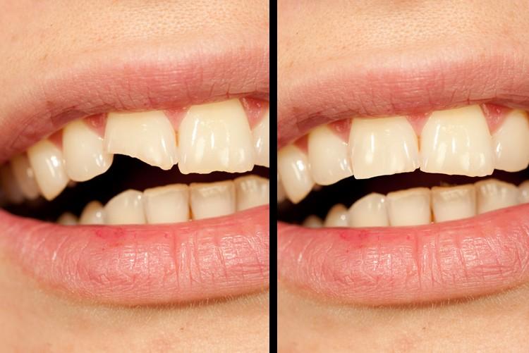 Lücken in Zähnen füllen