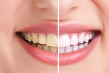 Zähne weissen & Gelb reduzieren