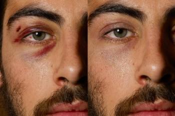 Augenringe, Augenweiss