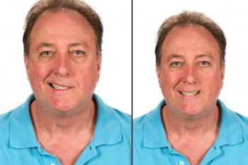 Asymmetrisches Lachen, hier am Beispiel einer Facialparese.