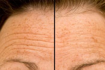 Stirnfalten auf homogener Umgebung (ohne Haare) abmildern